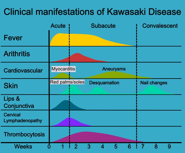 Fases cl  237 nicas de la enfermedad de KawasakiKawasaki Disease In Children