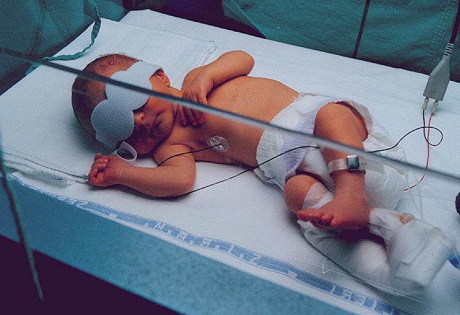 recien_nacido_en_fototerapia