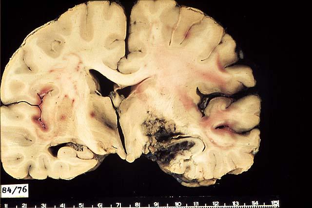 caso clinico neumologia: