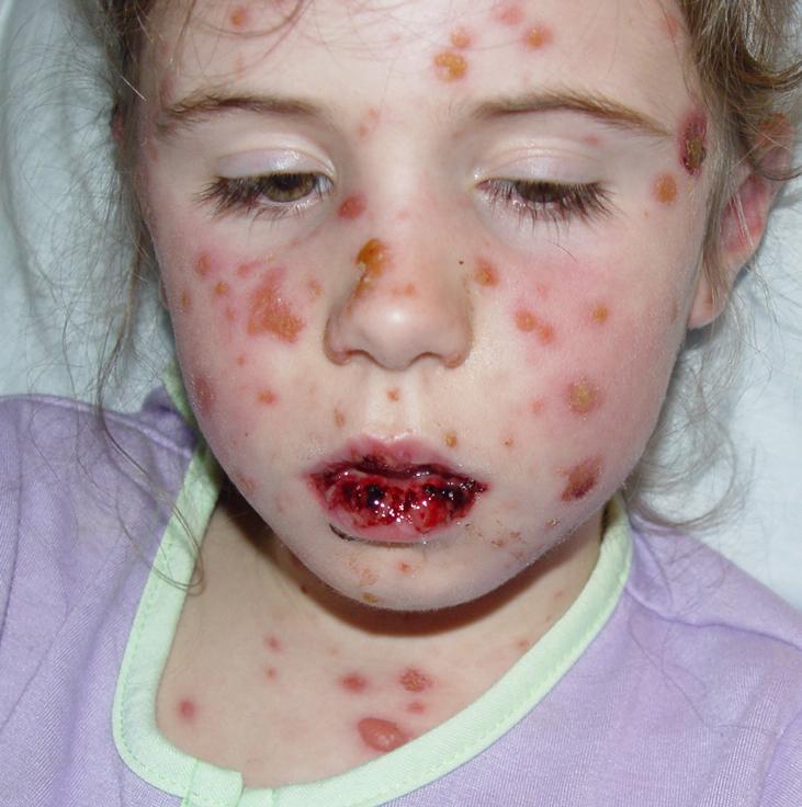 Síndrome de Stevens-Johnoson ó Eritema polimorfo mayor