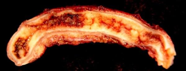 Acute_Appendicitis