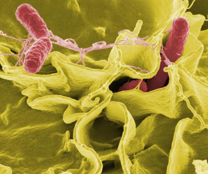 Microfotografía electrónica de Salmonella typhimurium.