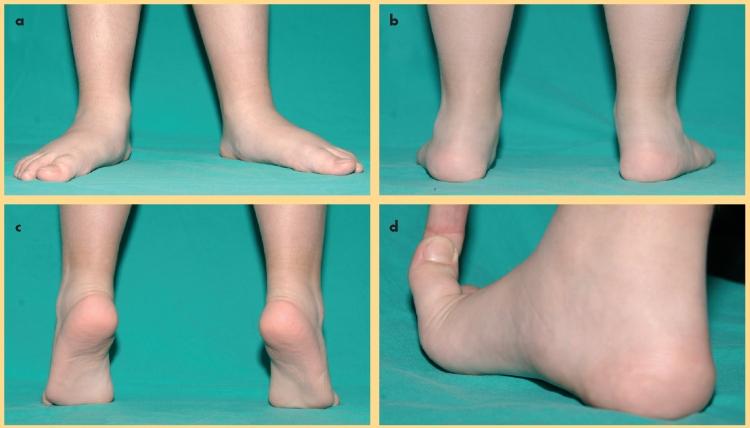 Pie plano flexible. a) Aspecto frontal. b) Aspecto posterior, se observa talo valgo. c) y d) Reconstrucción del arco plantar medial con maniobras comentadas.